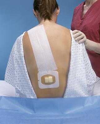 nastere epidurala