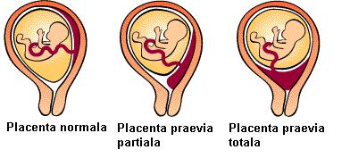 simptomele sarcinii in primele saptamani