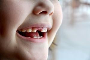 Mi-a cazut un dintisor