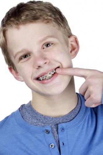 la-ce-varsta-se-pune-aparat-dentar-copilului