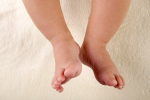 Primii pasi ai copilului - posibile malformatii si afectiuni ortopedice