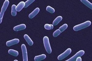 Virus versus bacterii: Este necesar un antibiotic?